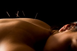 acupuncture2